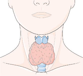 Hypothyroidism (low thyroid hormone): Foods allowed and avoid