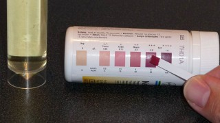 Not Losing Weight with Keto Diet Even After Positive Urine Ketone Test